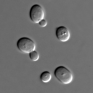 Baker's yeast under the microscope